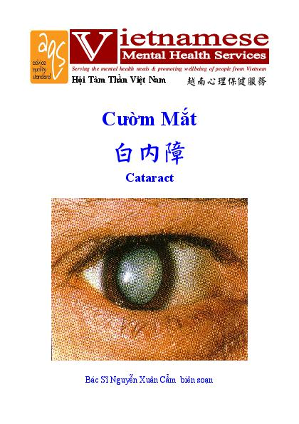 Cataract Vn Cn